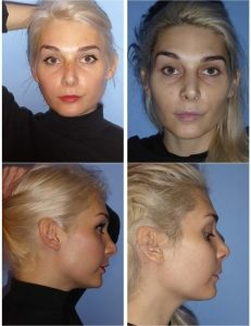 Buccal Lipectomy Before and After