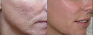 Deep FX Laser Treatment