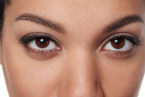 Brow Lift by Dr. Roche