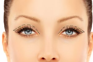 Eyelid Lift by Dr. Roche