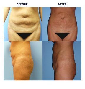 HD Liposuction & Liposculpture Procedures Metro Detroit MI Dr Roche
