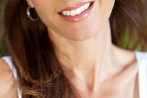 Neck Lift by Dr. Roche