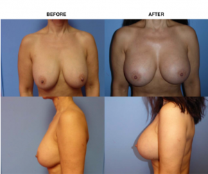 Breast Augmentation Breast Exchange