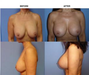 Breast Augmentation Breast Exchange