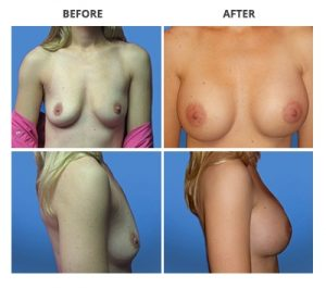 Breast Implants by Dr. Roche 2