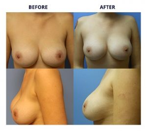 Breast Implants by Dr. Roche 3