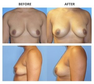 Breast Implants by Dr. Roche 4