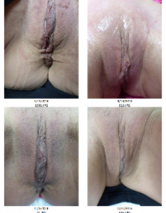 DIVA Vaginal Rejuvenation Michigan Award-winning Dr Gregory C Roche