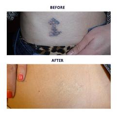 Tattoo Removal Procedures - Metro Detroit MI - Dr Roche