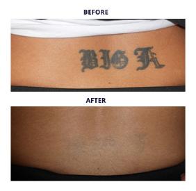 Tattoo Removal Procedures - Metro Detroit MI - Dr Roche 1