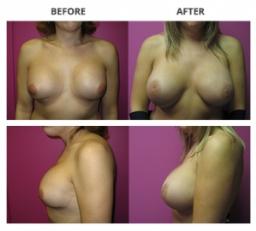 Transgender Procedure by Dr. Roche
