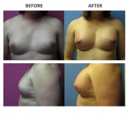 Transgender Breast by Dr. Roche