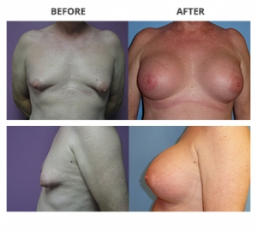 Transgender Breast Surgery by Dr. Roche