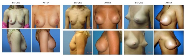 breast augmentation by dr. roche row 1
