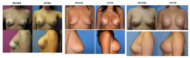 breast augmentation by dr. roche row 2