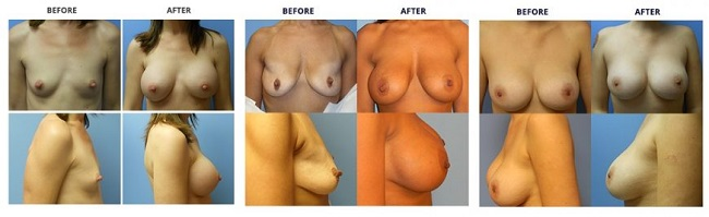 breast augmentation by dr. roche row 3
