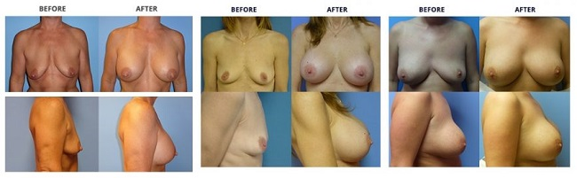 breast augmentation by dr. roche row 4