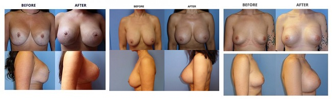 breast augmentation by dr. roche row 5