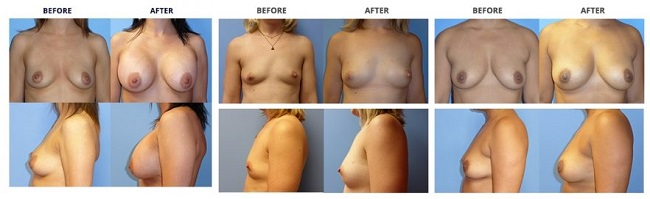 breast augmentation by dr. roche row 6