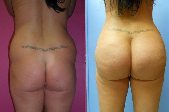 BBL Before and After Back