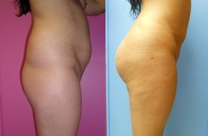 BBL Before and After Side