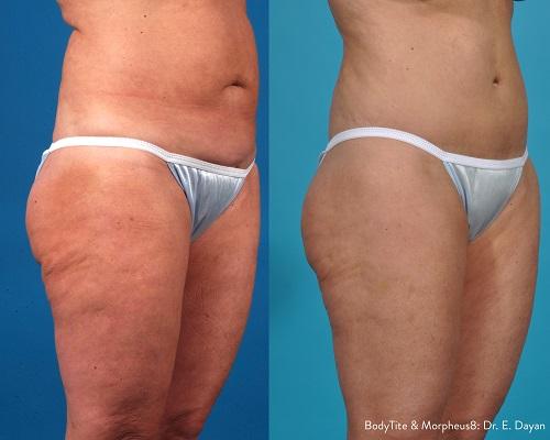 Morpheus8 Body Treatment