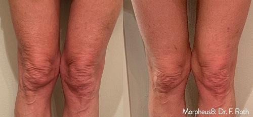 Morpheus8 Leg Treatment