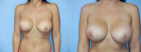 Saline to Silicone Breast Implants