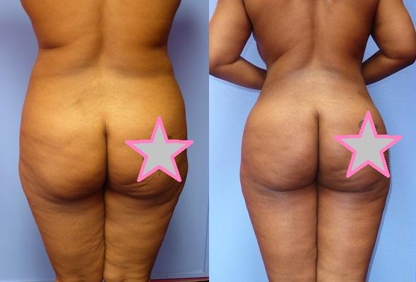 Brazilian Butt Lift Dr. Roche 2
