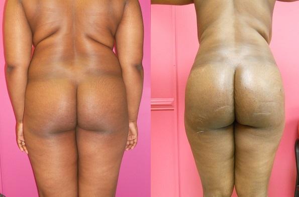 Brazilian Butt Lift Dr. Roche