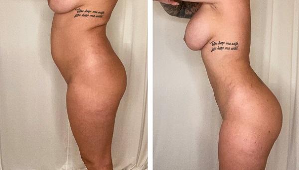 Left Facing Liposuction
